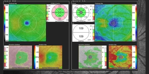 Webinar: Het gebruik van de OCT bij glaucoom