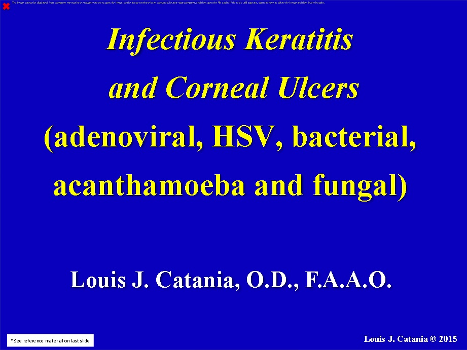 INFECTIOUS KERATITIS AND CORNEAL ULCERS